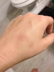 GROSS WARNING: Fun fact, when I throw up, I headbutt my hand, resulting in this lovely bruise